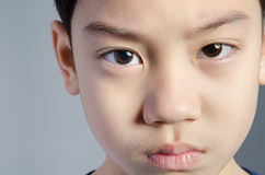 Enfant Petit garçon drôle Garçon beau avec des yeux au beurre noir Images libres de droits