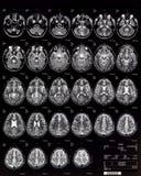 Enfants du cerveau MRI 10 ans Photo libre de droits