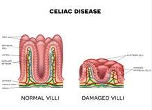 Enfermedad celiaca stock de ilustración