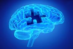 Enfermedad de la demencia y una pérdida de función y de memorias del cerebro Imágenes de archivo libres de regalías