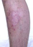 Enfermedad de la piel Foto de archivo