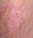 Enfermedad de la piel Foto de archivo libre de regalías