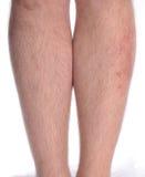 Enfermedad de la piel en la pierna Imagen de archivo libre de regalías