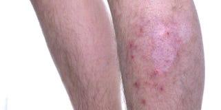 Enfermedad de la piel Vitiligo Fotografía de archivo libre de regalías