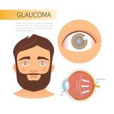 Enfermedad de ojos de Infographic libre illustration