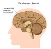 Enfermedad de Parkinson ilustración del vector