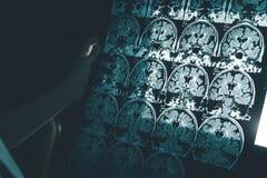 Enfermedad del ` s de Alzheimer en MRI imagen de archivo