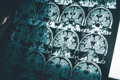 Enfermedad del ` s de Alzheimer en MRI fotografía de archivo
