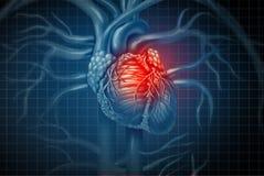 Enfermedad médica del ataque del corazón ilustración del vector