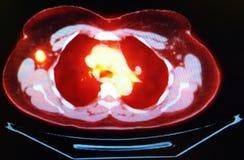 Enfermedad metastática del cáncer de pecho de la exploración del ct del animal doméstico fotos de archivo libres de regalías