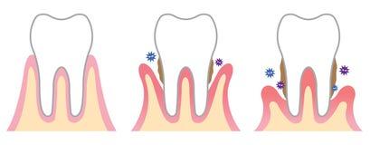 Enfermedad periodontal Fotos de archivo libres de regalías