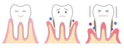 Enfermedad periodontal Foto de archivo