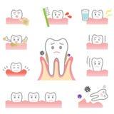 Enfermedad periodontal Fotos de archivo