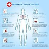 Enfermedades del sistema respiratorio ilustración del vector