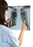 Enfermera de sexo femenino que señala en la radiografía Fotos de archivo libres de regalías