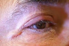 Enfermo humano con conjuntivitis del ojo Fotos de archivo