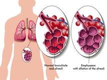 Enfisema pulmonar Imagen de archivo libre de regalías