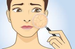 Enfoca adentro el facial a mirar la piel seca ilustración del vector