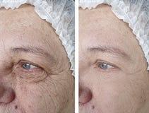 Enfrente uma mulher mais idosa antes e depois dos tratamentos foto de stock