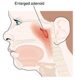 Enlarged adenoid glands Stock Photos