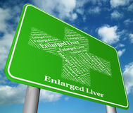 Enlarged Liver Shows Extend Ailment And Big Stock Image