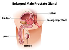 Enlarged male prostate gland Royalty Free Stock Image