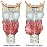 Enlarged thyroid gland 3d medical  illustration isolated on white background stock illustration
