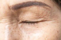 Enrugado da pálpebra asiática velha da pele da mulher fotos de stock