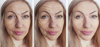 Enrugamentos antes após o efeito paciente dos procedimentos da diferença da pigmentação do efeito da seta da colagem da tensão imagens de stock