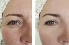 Enrugamentos da mulher antes após a diferença madura da cosmetologia do efeito oval para levantar procedimentos antienvelhecime imagem de stock royalty free