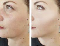 Enrugamentos da mulher antes após a diferença madura da cosmetologia da remoção do efeito oval para levantar procedimentos an fotos de stock