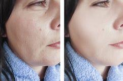 Enrugamentos da mulher antes após a diferença oval da cosmetologia do efeito para levantar procedimentos antienvelhecimento foto de stock