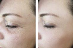 Enrugamentos da mulher antes após a diferença oval da cosmetologia da remoção do efeito para levantar procedimentos antienvel fotos de stock royalty free