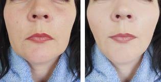 Enrugamentos da mulher antes e depois da diferença oval da cosmetologia do efeito para levantar procedimentos antienvelhecimento fotografia de stock