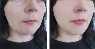 Enrugamentos da mulher antes e depois da diferença oval da cosmetologia para levantar procedimentos antienvelhecimento imagem de stock