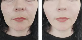 Enrugamentos da mulher antes e depois dos procedimentos antienvelhecimento do elevador oval da diferença imagens de stock royalty free