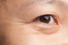 Enrugamentos do olho imagens de stock