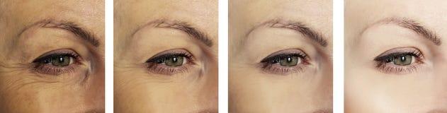 Enrugamentos do olho da mulher antes e depois dos procedimentos da colagem da diferença da remoção fotos de stock royalty free