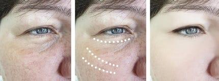 Enrugamentos idosos fêmeas da remoção do rosacea antes após a correção madura da cosmetologia do elevador da diferença da colagem imagens de stock