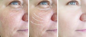 Enrugamentos idosos fêmeas da remoção do rosacea antes após a cosmetologia do elevador da diferença da colagem madura foto de stock royalty free