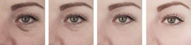 Enrugamentos idosos fêmeas dos olhos antes da diferença da remoção após procedimentos de levantamento da correção foto de stock