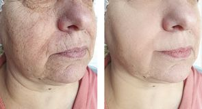 Enrugamentos masculinos da testa antes e depois do tratamento da cosmetologia do biorevitalization da diferença foto de stock royalty free