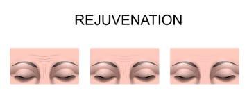 Enrugamentos na testa rejuvenation Cirurgia plástica ilustração stock