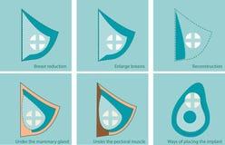 Ensemble d'icônes pour la chirurgie de sein Image stock
