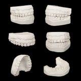 Ensemble de modèles dentaires de gypse de bâti image stock