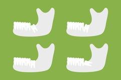 Ensemble de type de dent de sagesse avec la mâchoire inférieure ou la mâchoire inférieure Photo stock