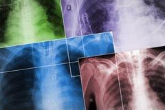 Ensemble des images de rayon X des coffres de patients dans le colo différent Image libre de droits