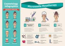 Ensemble illustré par vecteur avec l'aiguille micro de salon mesotherapy illustration stock