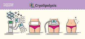 Ensemble illustré par vecteur avec le traitement de Cryolipolysis de cosmétologie illustration stock