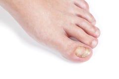 Enthäuten Sie Pilz auf dem Nagel, auf dem weiblichen Fuß. stockfoto
